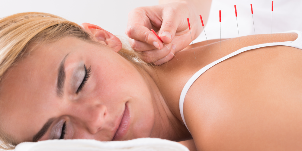 relaxing acupuncture session for stress