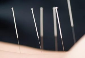 You don't need to suffer! Acupuncture treatment can make a big difference for menstrual pain.