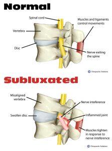 subluxation.15110056